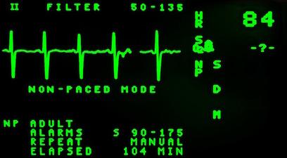 Electrocardiogramma salute rischio